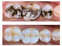 Top: Dental Amalgam filling  Bottom: Composite Resin Filling