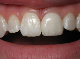 AFTER REPLACEMENT CROWNS